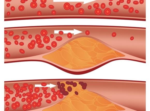 Miażdżyca i nadciśnienie tętnicze